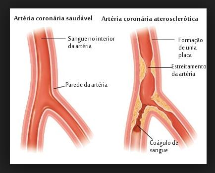 Triglicérides Gordura, Infarto, Carboidratos - Acidente Vascular Cerebral (AVC). Entupimento dos vasos sanguíneos