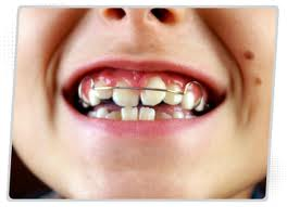 Odontologia – Ortopedia Funcional Dos Maxilares – Aparelho Ortopédico Funcional.
