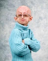 doença-progeria