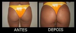 gluteoplastia-antes-depois-
