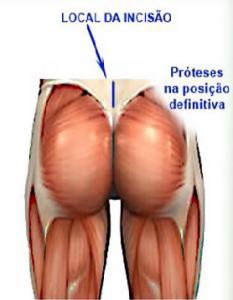 gluteoplastia_musculos