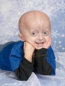 portador-de-progeria