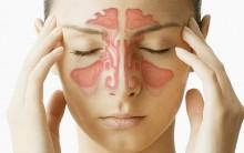 O Que É Sinusite – Causas, Sintomas e Tratamento
