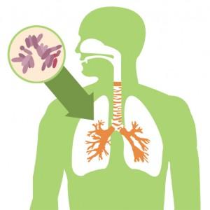 tuberculose 300x300 O Que É Tuberculose   Sintomas, Causas e Tratamento