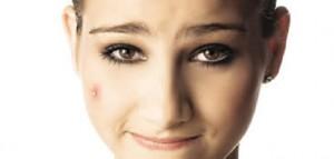 Maquiagem Para Esconder Espinhas – Dicas e Vídeo Passo a Passo