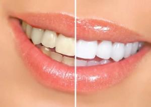 Como Ter os Dentes Mais Brancos – Dicas