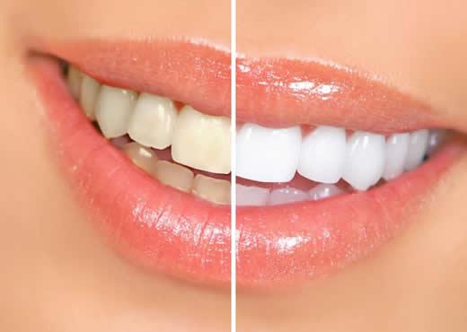 sorriso-branco