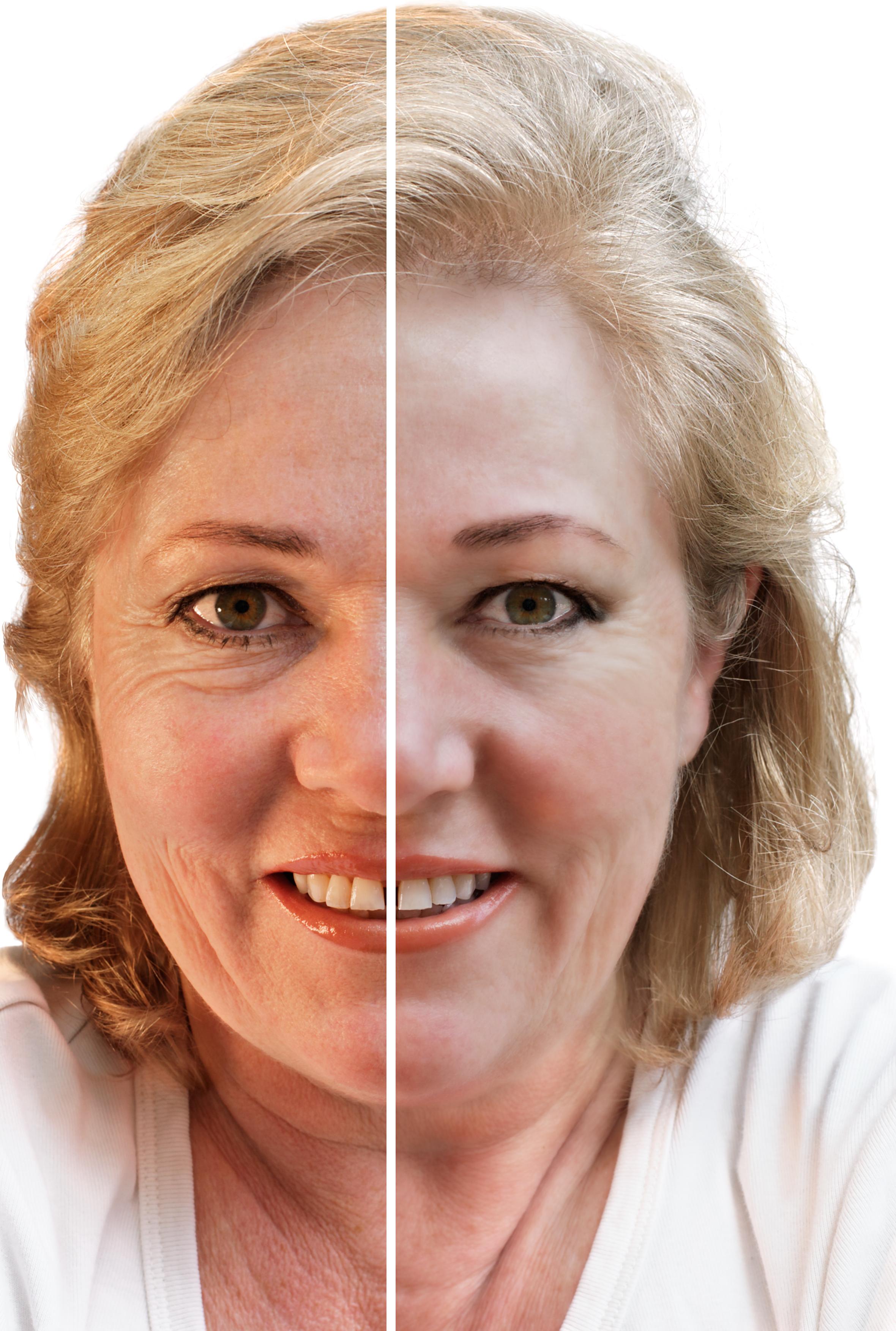 antes-depois-botox