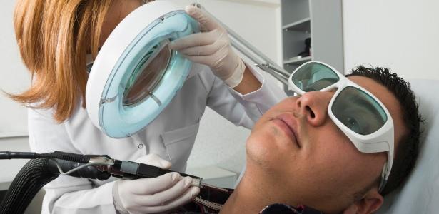 remocao-de-pelos-com-laser-depilacao