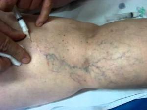 tratamento-de-varizes