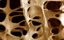 Osteoporose – O Que É e Como Prevenir