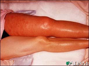 trombose-sintomas