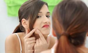 Acne Cística – O Que É, Tratamentos e Maquiagem Para Esconder
