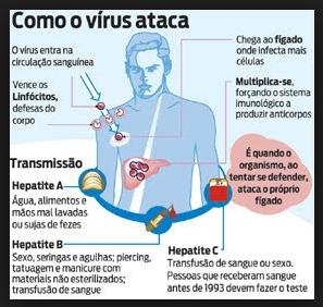 Hepatite a - sintomas, causas, tratamento, transmissão, prevenção e vacina. Vírus Ataca