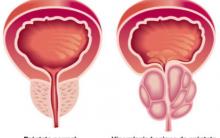 Hiperplasia Benigna da Próstata. O que é, Sintomas e Tratamento