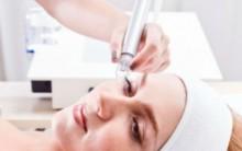 Peeling de Diamante ou Microdermoabrasão  –  Indicações e Como é feito