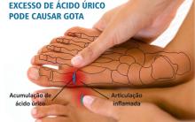 Acido Úrico – Sintomas e Tratamento