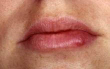 Espinhas nos Lábios – Causas e Como se Livrar