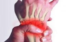 Tendinite Nas Mãos – Sintomas e Exercícios Preventivos