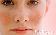 O Que É Melasma – Causas  e Como Tratar