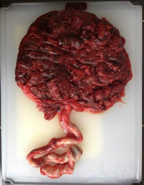 Dieta da Placenta -