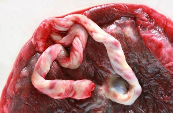 Dieta da Placenta
