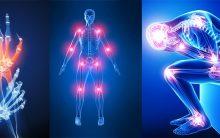 Artrite Tipos – Causas, Sintomas e Como Tratar