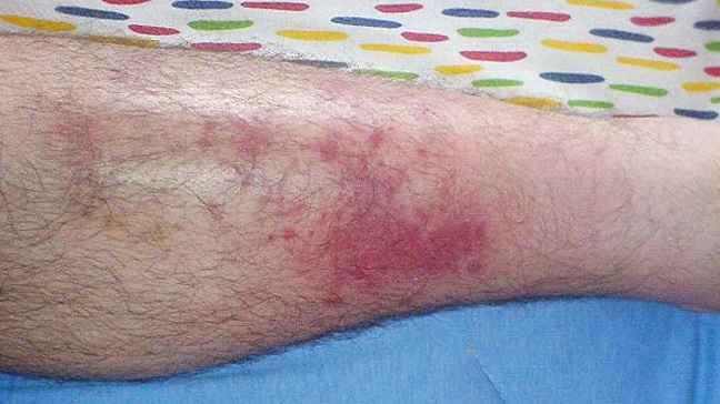 celulite-infecciosa