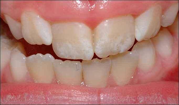 fluorose-dentaria-manchas-nos-dentes-como-evitar