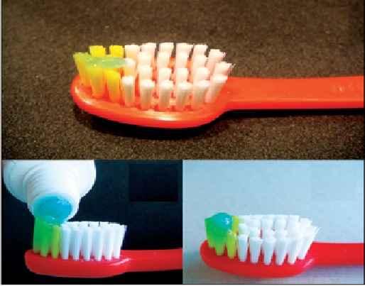 fluorose-dentaria-manchas-nos-dentes-evitar