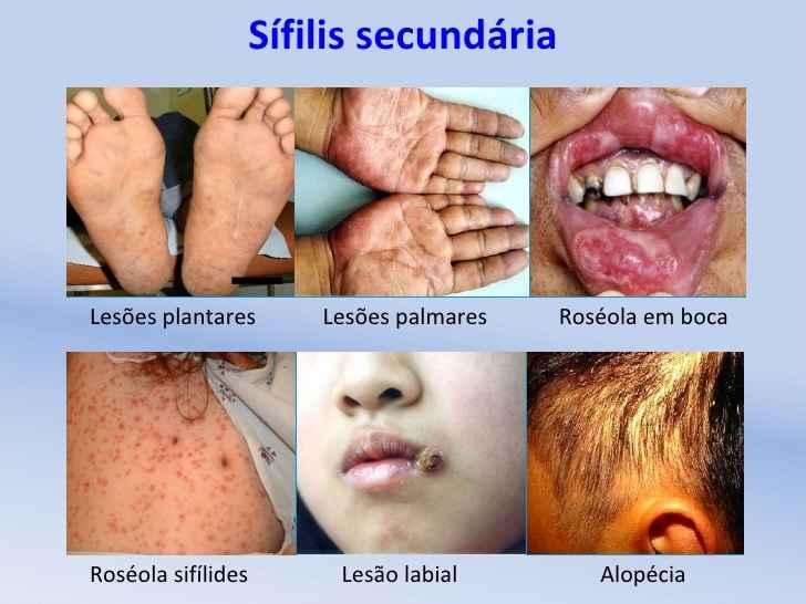 sifilis-transmissao-sintomas