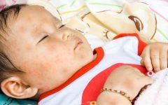 Roséola Em Crianças – Causas e Sintomas