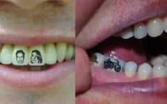 Tatuagem Nos Dentes – Como Funciona e Desenhos