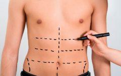 Abdominoplastia Masculina – Como Funciona e Indicações
