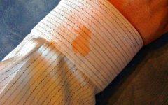 Manchas de Óleo Nas Roupas – Como Tirar
