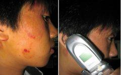 Celular e Pele – Efeitos Colaterais