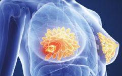 Equipamento Para Diagnosticar Câncer de Mama – Novidade