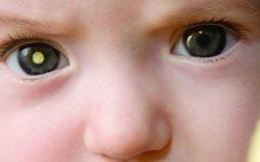 Retinoblastoma – Causas e Sintomas